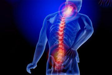 Cervical and Lumbar Pain
